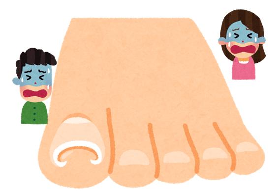 足の親指が巻き爪になってしまいとても痛い!