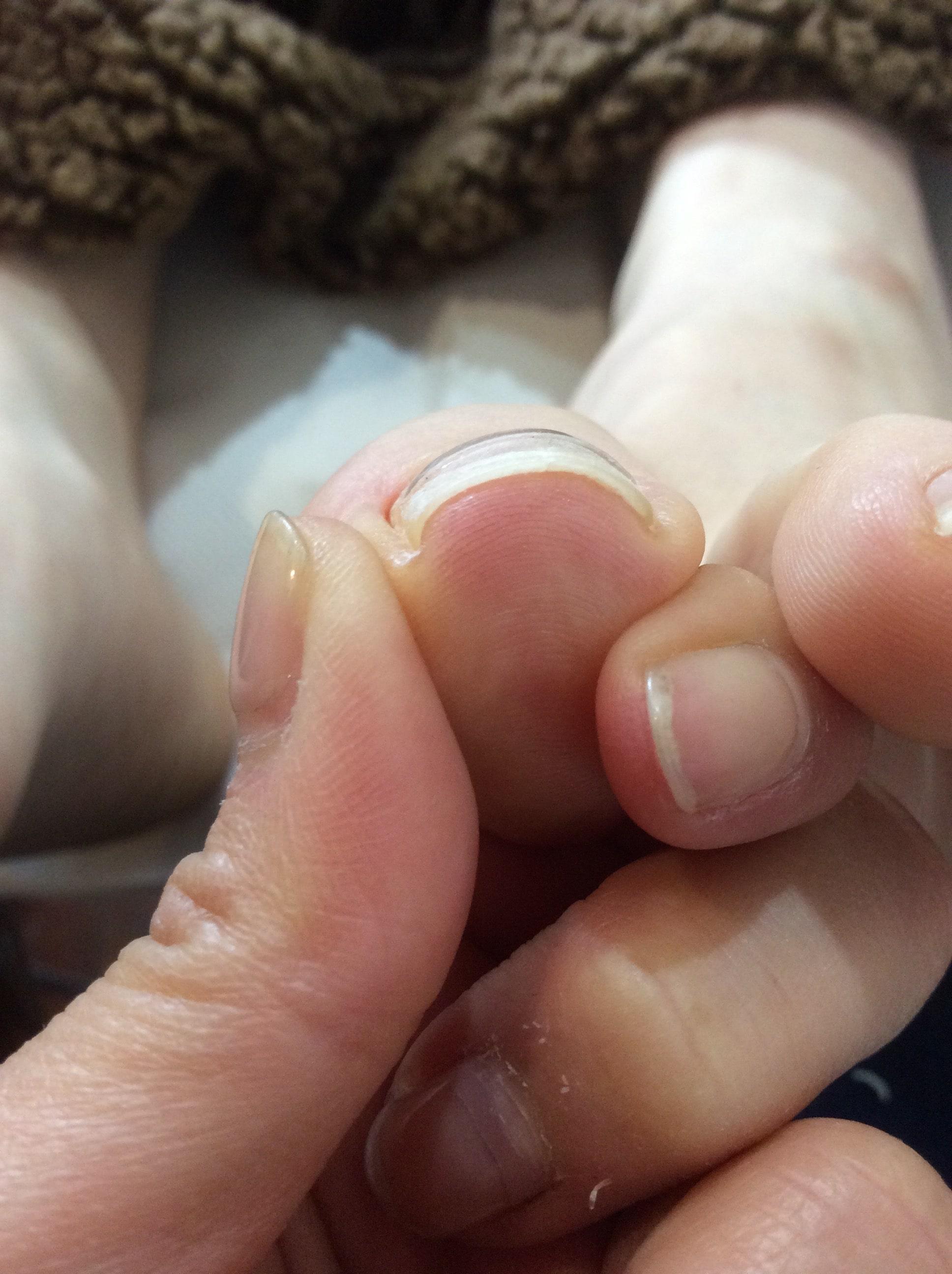 【秦野】親指の爪が巻いていないのに痛い!最初にやるべきことは