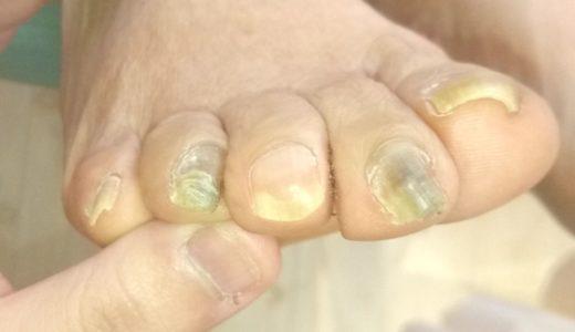 秦野の病院へ!分厚い爪で病院に断られた方が来ました